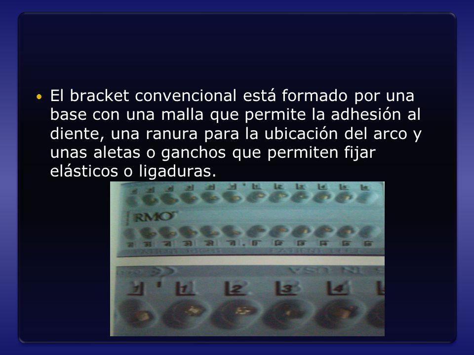 El bracket convencional está formado por una base con una malla que permite la adhesión al diente, una ranura para la ubicación del arco y unas aletas