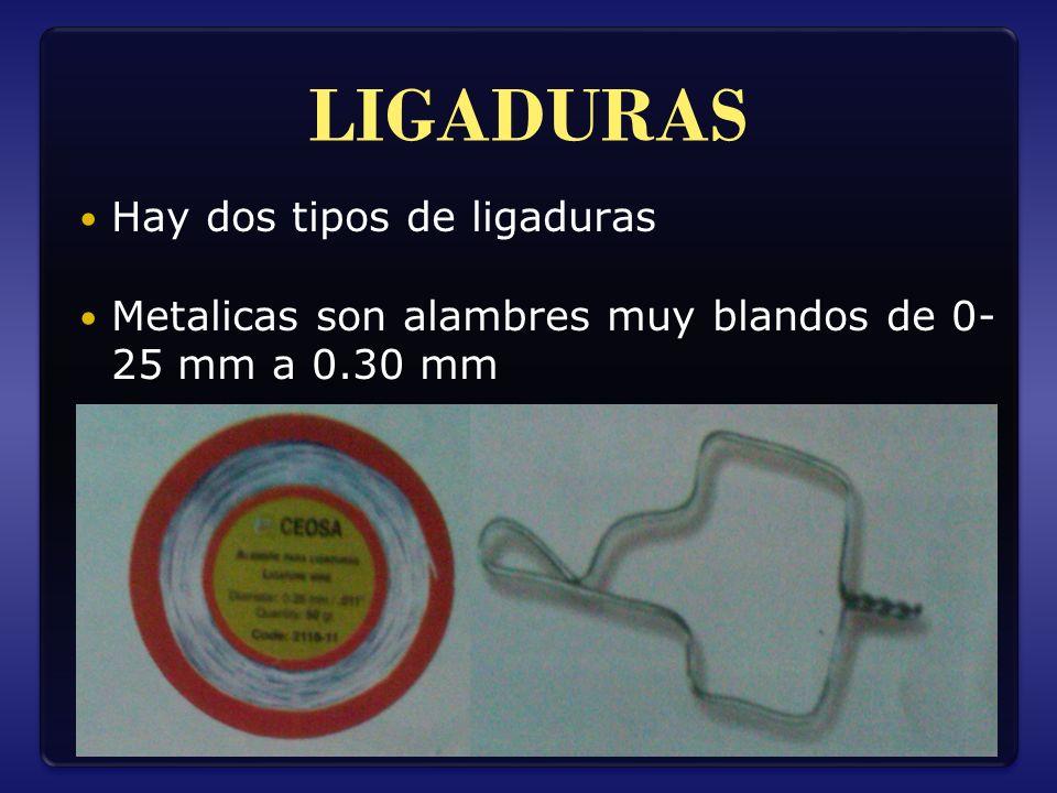 LIGADURAS Hay dos tipos de ligaduras Metalicas son alambres muy blandos de 0- 25 mm a 0.30 mm