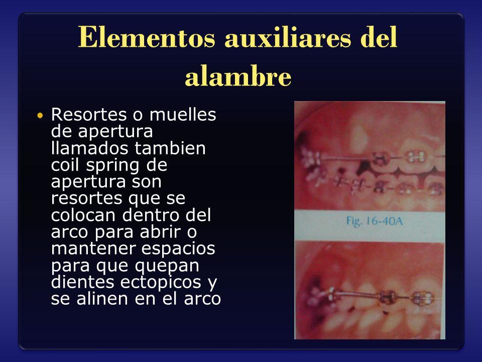 Elementos auxiliares del alambre Resortes o muelles de apertura llamados tambien coil spring de apertura son resortes que se colocan dentro del arco p