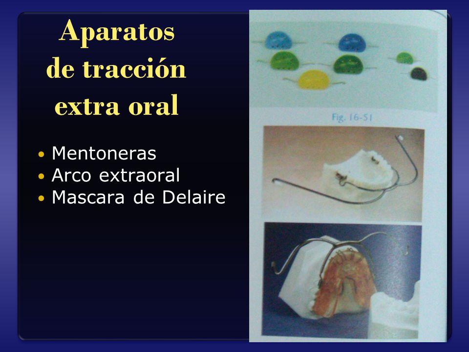 Aparatos de tracción extra oral Mentoneras Arco extraoral Mascara de Delaire