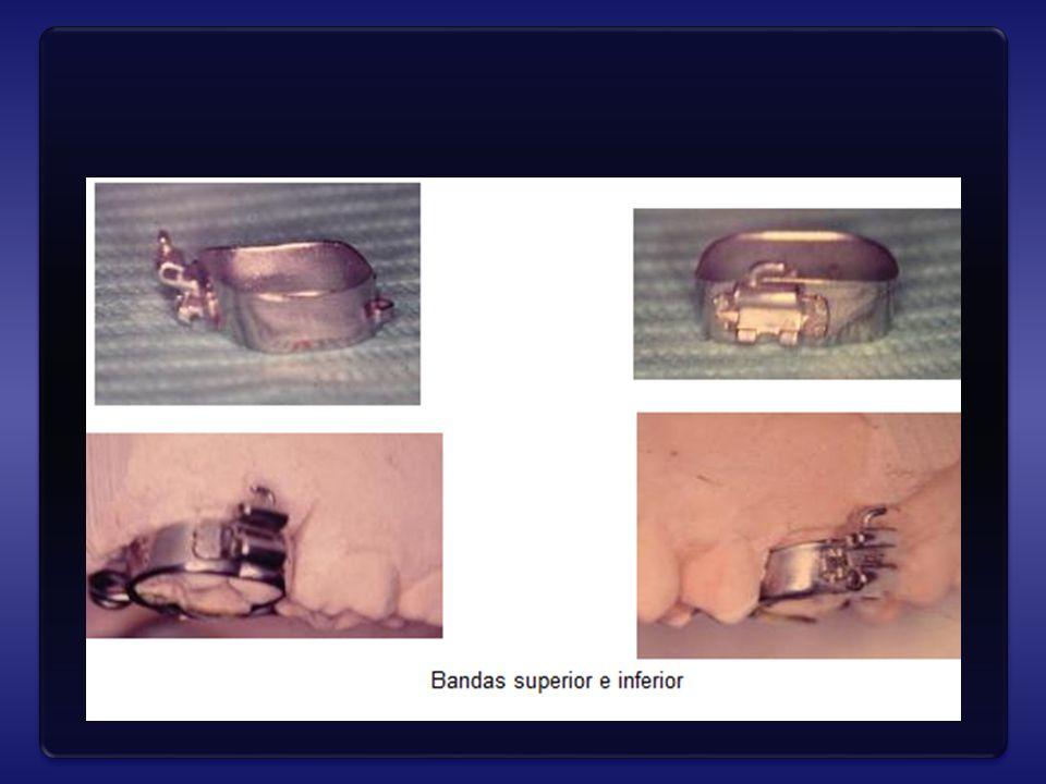 CADENAS ELASTOMERICAS Se colocan en todos los brackets un eslabon a cada uno generalmente de 6 a 6 de la misma arcada para cerrar espacios