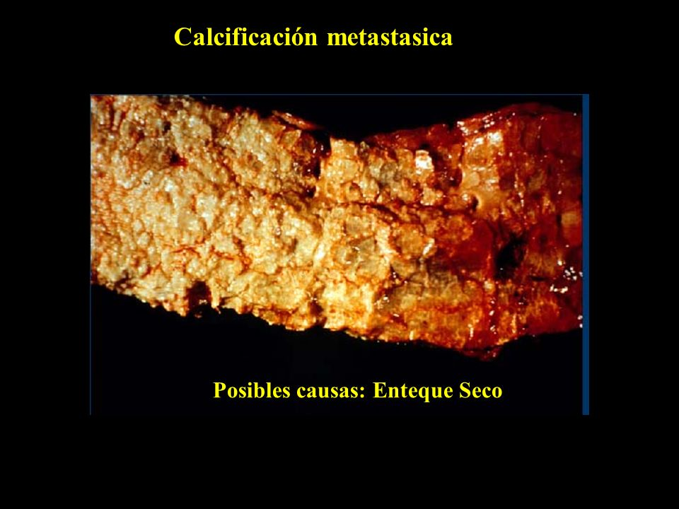 Calcificación metastasica Posibles causas: Enteque Seco