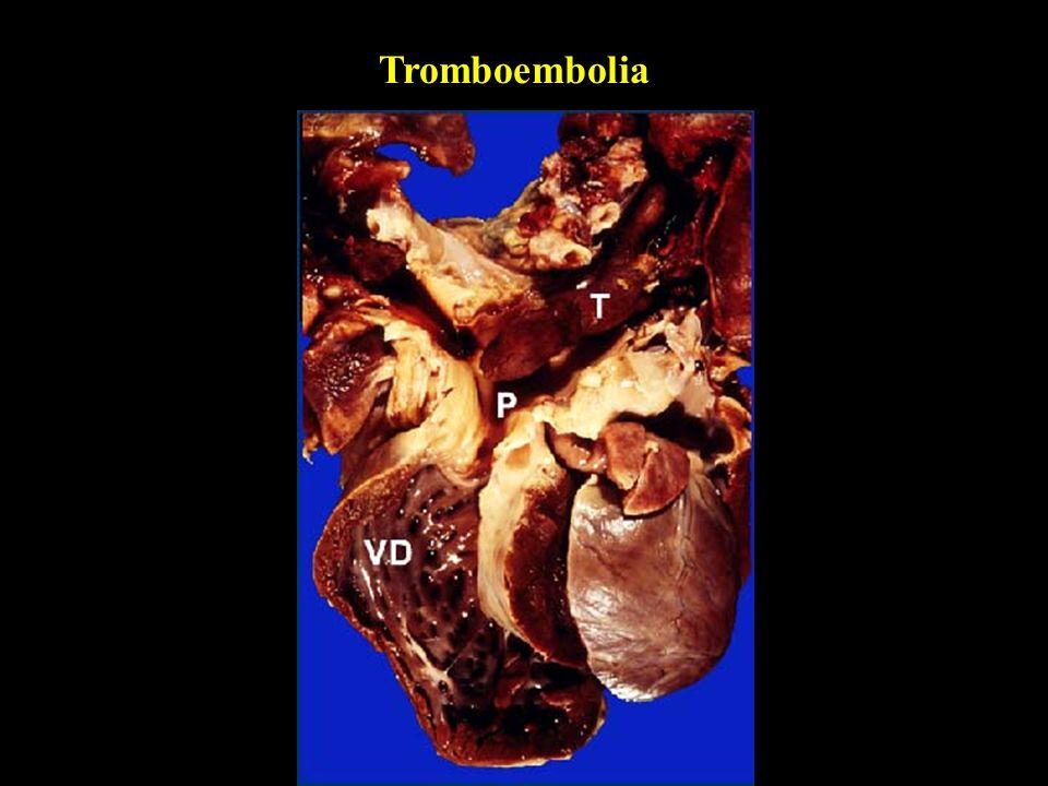 Tromboembolia