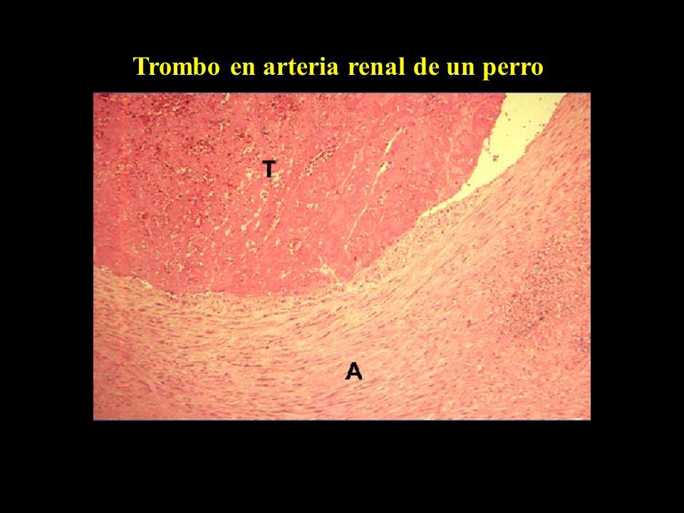 Aterosclerosis coronaria Corazón de un perro hipotiroideo
