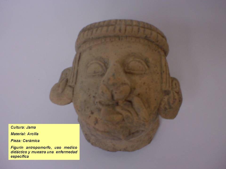 Cultura: Jama Material: Arcilla Pieza: Cerámica Figurín antropomorfo, uso medico didáctico y muestra una enfermedad específica