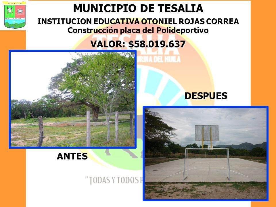 MUNICIPIO DE TESALIA INSTITUCION EDUCATIVA OTONIEL ROJAS CORREA Construcción placa del Polideportivo VALOR: $58.019.637 ANTES DESPUES