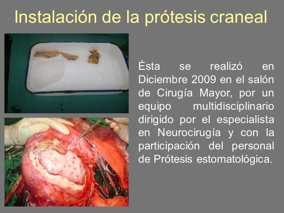 Instalación de la prótesis craneal Ésta se realizó en Diciembre 2009 en el salón de Cirugía Mayor, por un equipo multidisciplinario dirigido por el es