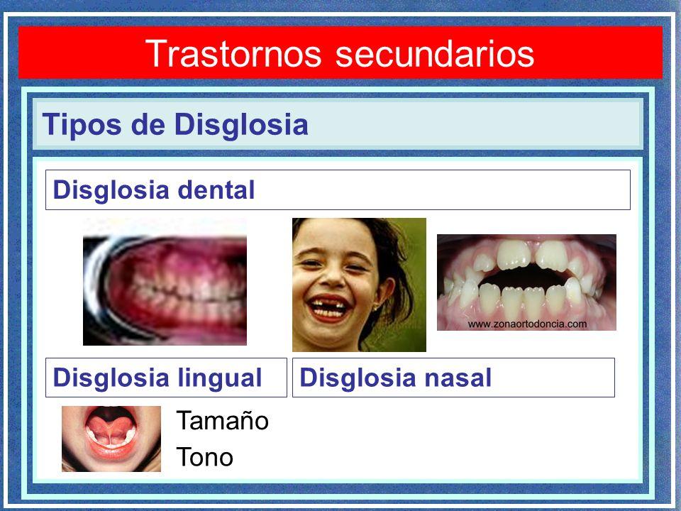 Tipos de Disglosia Disglosia dental Disglosia lingualDisglosia nasal Trastornos secundarios Tamaño Tono