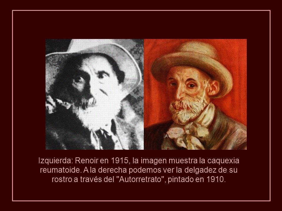 1915. Renoir con sus zapatos de lana debido a la grave deformidad de los pies. La grave artritis le causó terribles dolores. Los huesos se le encorvab