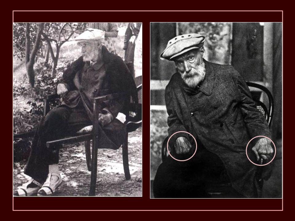 1917, Renoir en los jardines de Cagnes-sur-Mer. Cuando tenía que ir a los lugares en los que era difícil llegar en silla de ruedas, era llevado en and