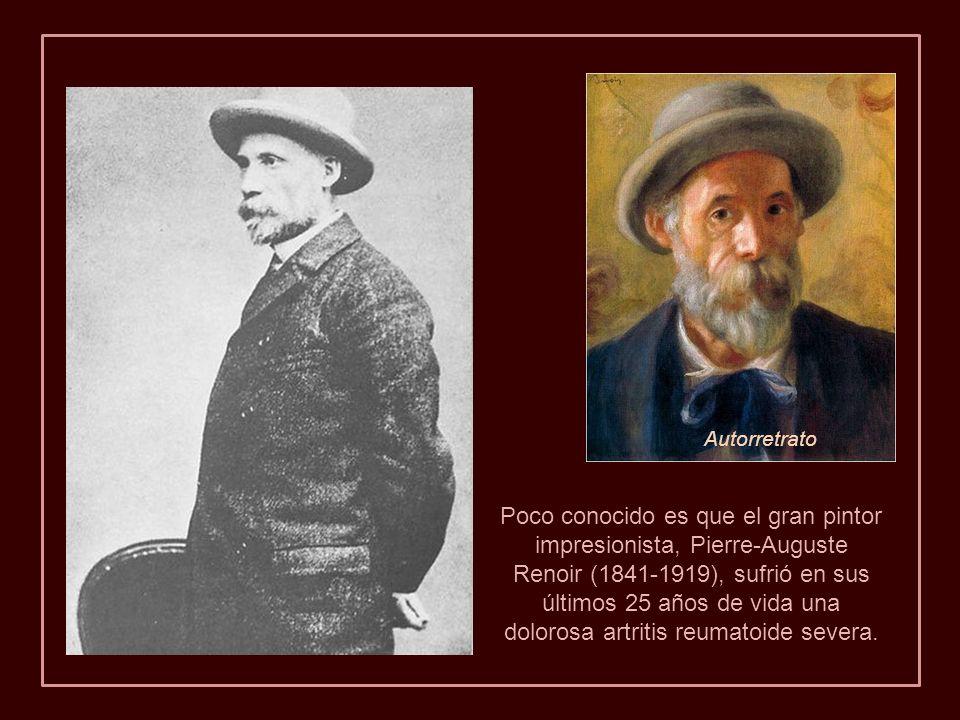 Poco conocido es que el gran pintor impresionista, Pierre-Auguste Renoir (1841-1919), sufrió en sus últimos 25 años de vida una dolorosa artritis reumatoide severa.