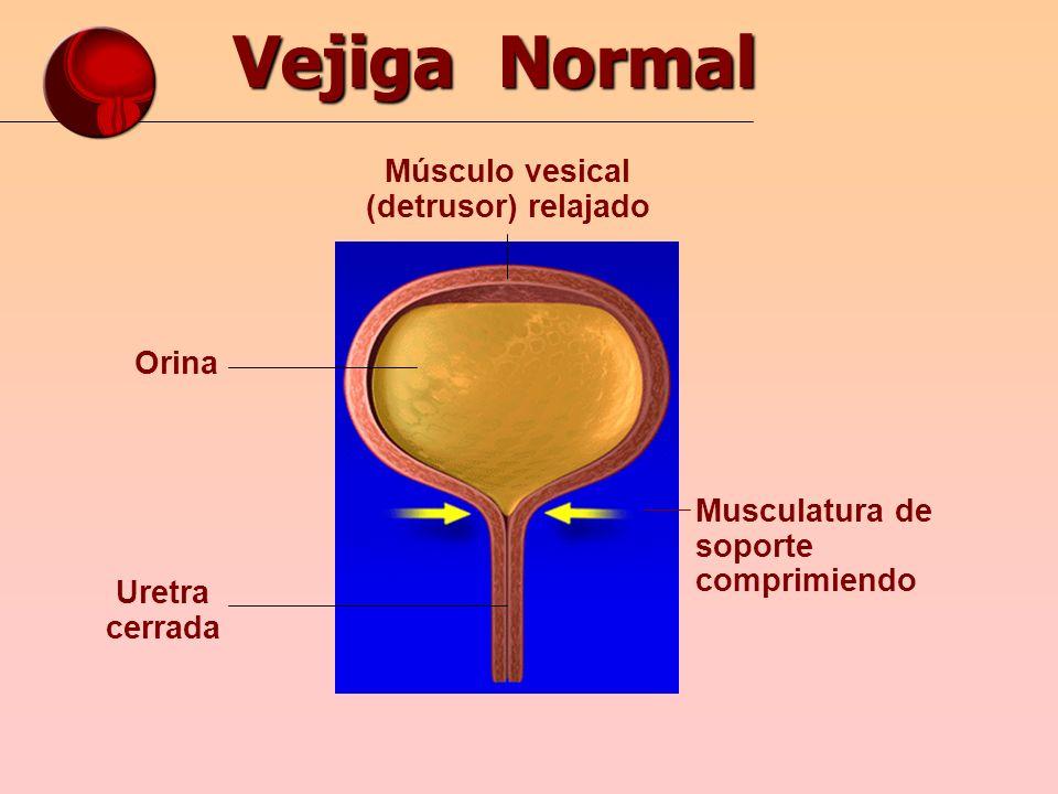 Vejiga Normal Musculatura de soporte comprimiendo Músculo vesical (detrusor) relajado Orina Uretra cerrada