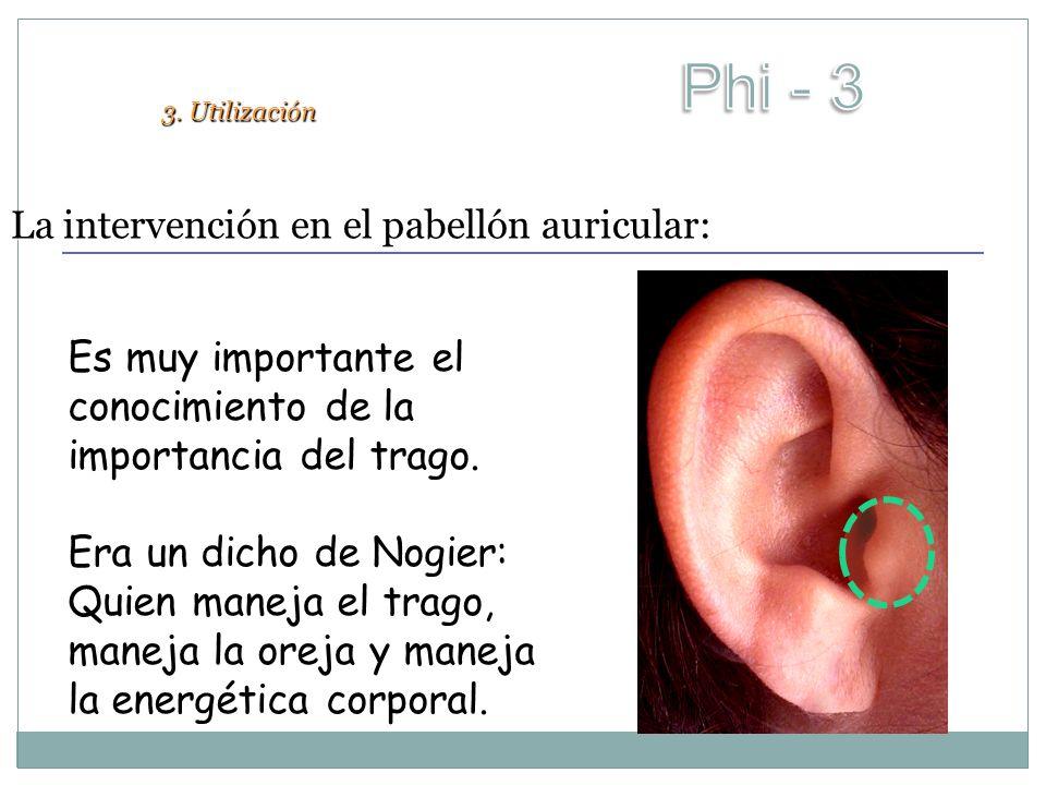 La intervención en el pabellón auricular: 3. Utilización Es muy importante el conocimiento de la importancia del trago. Era un dicho de Nogier: Quien