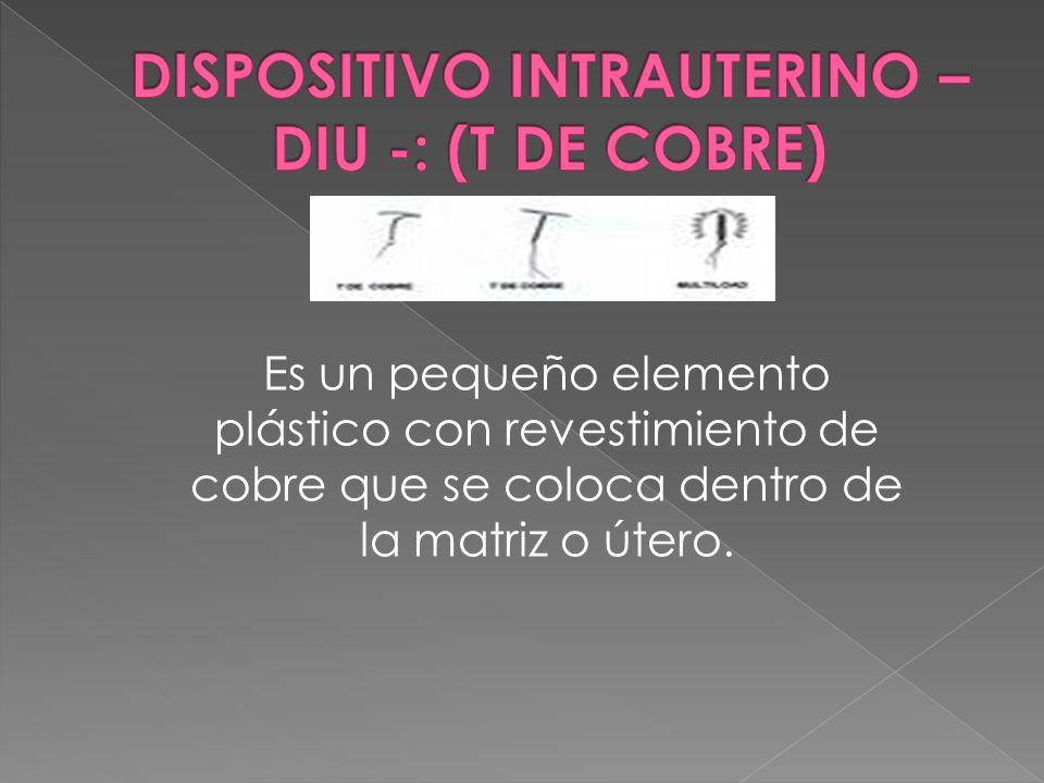 Es un pequeño elemento plástico con revestimiento de cobre que se coloca dentro de la matriz o útero.