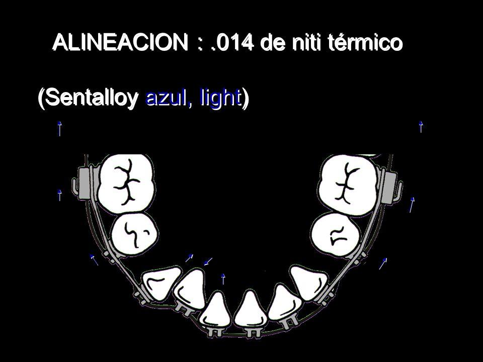 ALINEACION :.014 de niti térmico (Sentalloy azul, light) ALINEACION :.014 de niti térmico (Sentalloy azul, light)