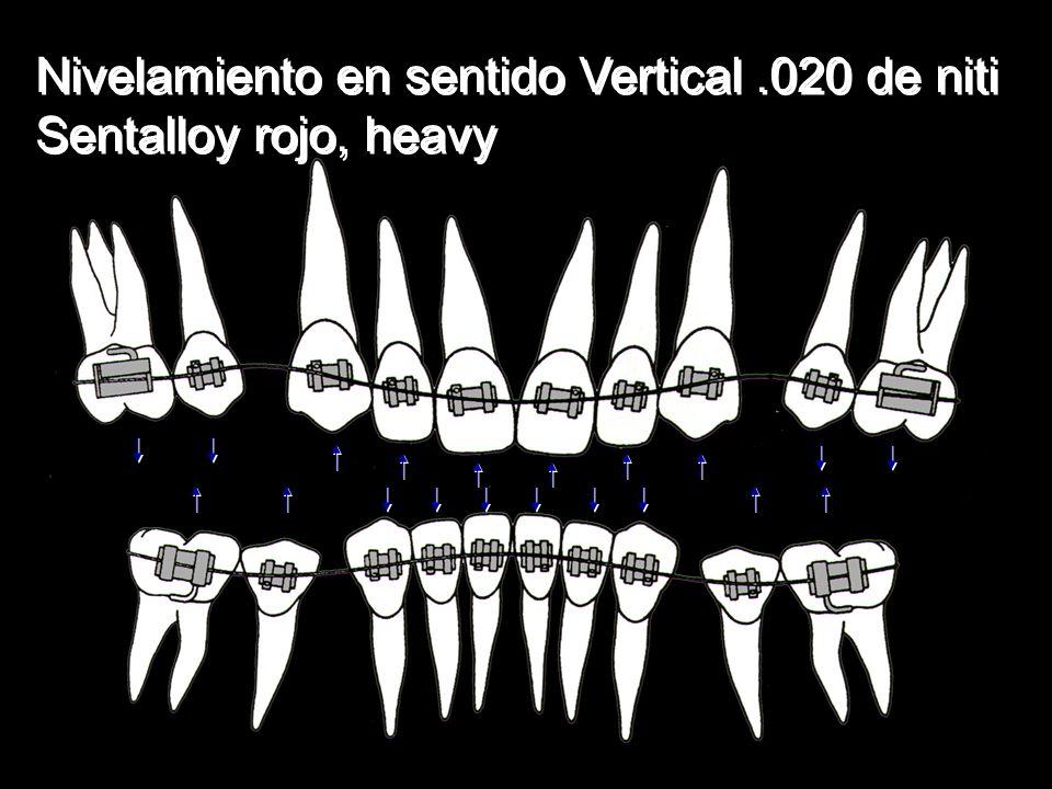 Nivelamiento en sentido Vertical.020 de niti Sentalloy rojo, heavy Nivelamiento en sentido Vertical.020 de niti Sentalloy rojo, heavy