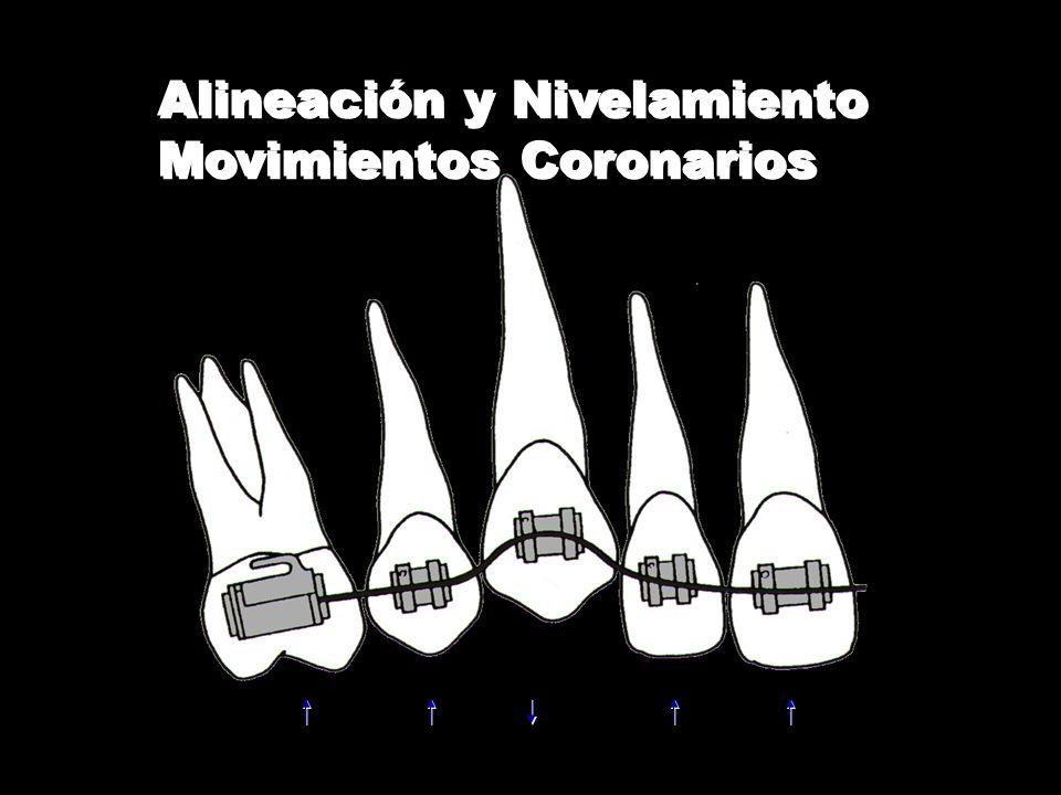Alineación y Nivelamiento Movimientos Coronarios Alineación y Nivelamiento Movimientos Coronarios