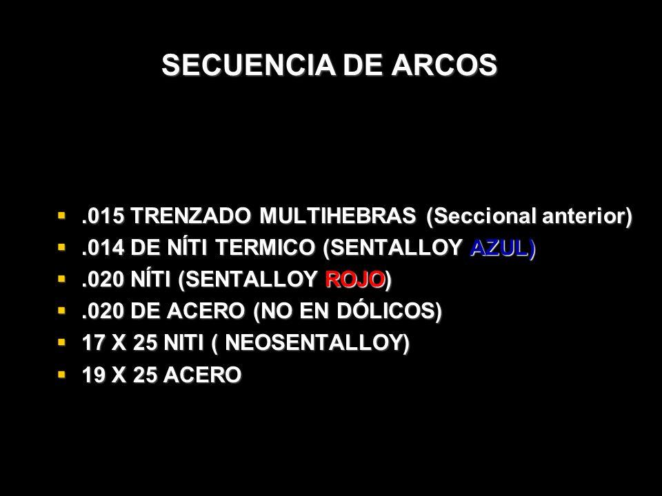 SECUENCIA DE ARCOS.015 TRENZADO MULTIHEBRAS (Seccional anterior).015 TRENZADO MULTIHEBRAS (Seccional anterior).014 DE NÍTI TERMICO (SENTALLOY AZUL).01