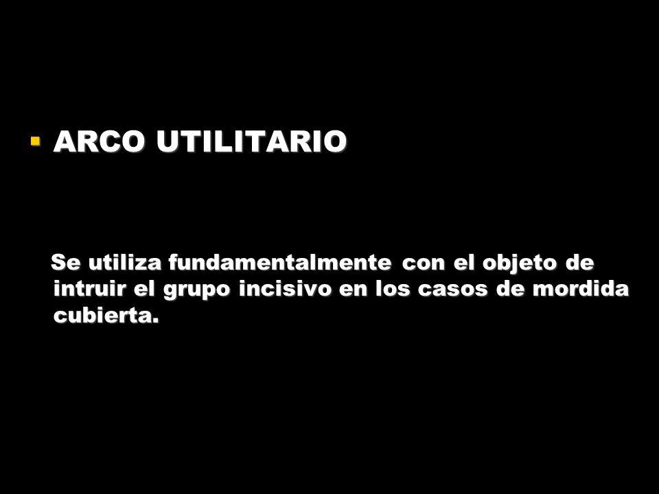 ARCO UTILITARIO ARCO UTILITARIO Se utiliza fundamentalmente con el objeto de intruir el grupo incisivo en los casos de mordida cubierta. Se utiliza fu