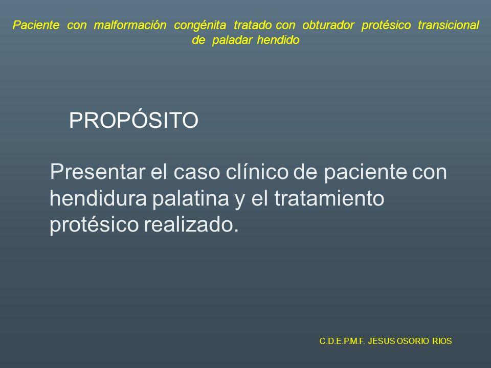 PRESENTACIÓN DE CASO CLÍNICO Vista palatina del defecto Paciente con malformación congénita tratado con obturador protésico transicional de paladar hendido C.D.E.P.M.F.