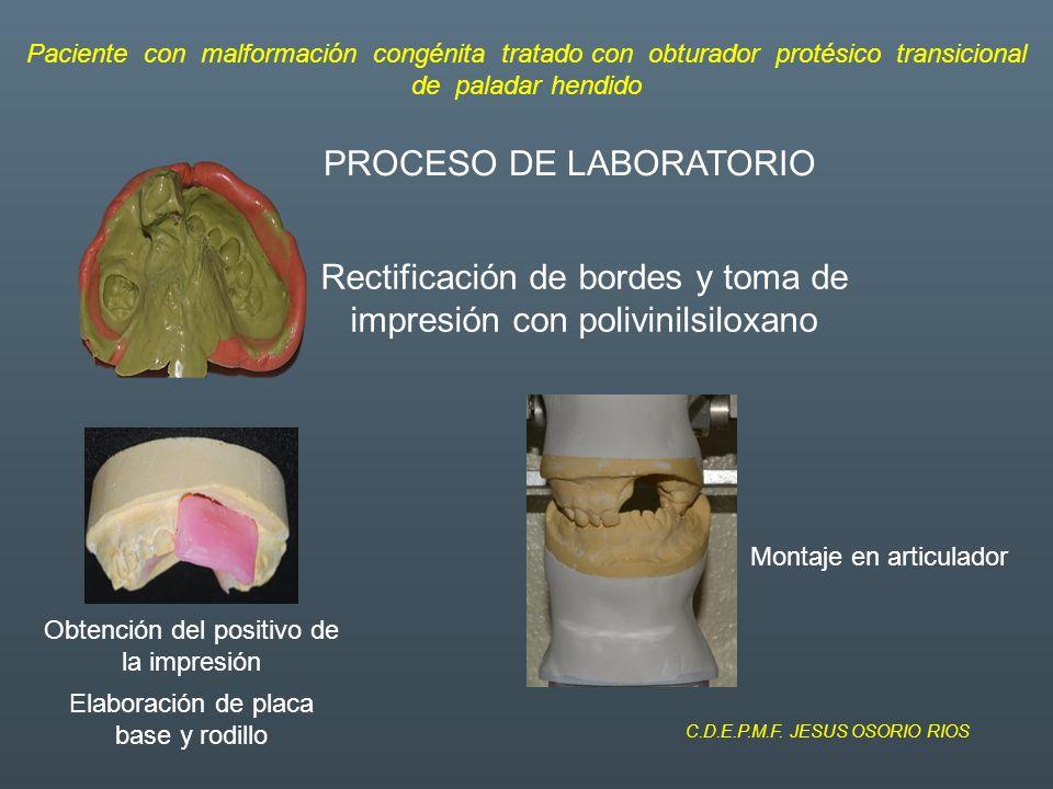 Conclusión Gracias al obturador, logramos darle mejor soporte al labio superior.