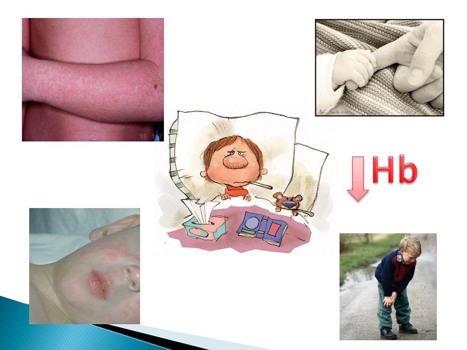 Complicación grave Px con procesos hemolíticos crónicos Interrupción de eritropoyesis y reticulocitopenia absoluta.