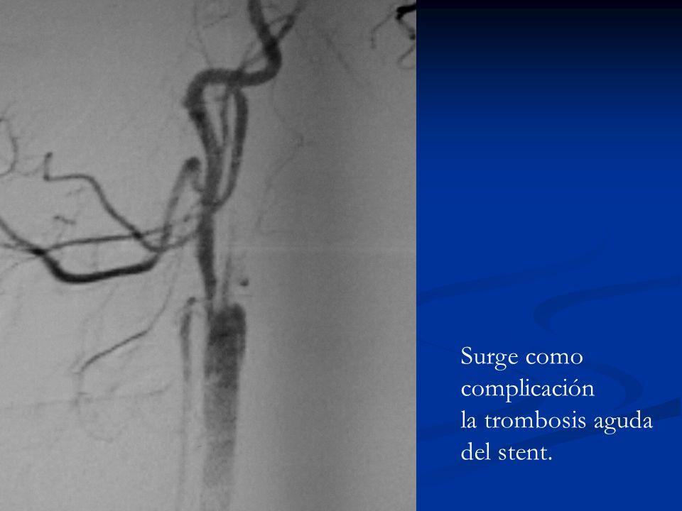 Surge como complicación la trombosis aguda del stent.