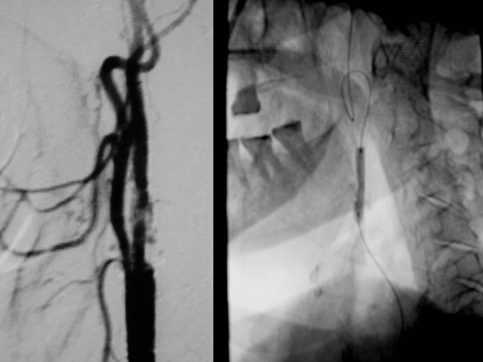 Se realiza fibrinolisis con rt-PA intra-arterial y se tratar de dilatar con balón. Se realiza fibrinolisis con rt-PA intra-arterial y se tratar de dil