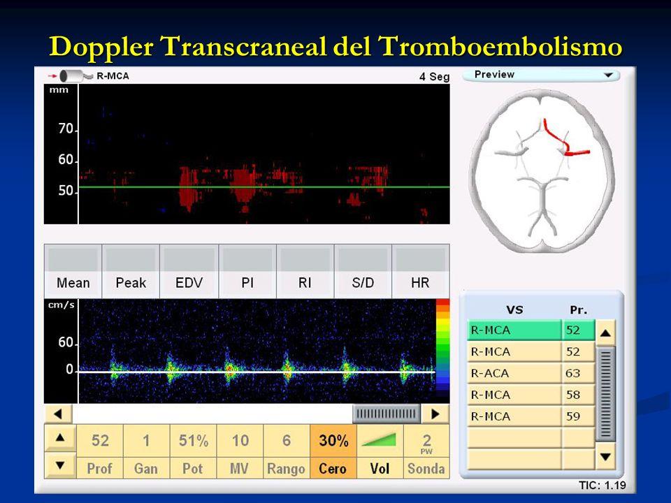 Doppler Transcraneal del Tromboembolismo