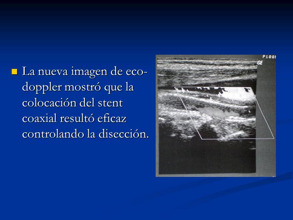 La nueva imagen de eco- doppler mostró que la colocación del stent coaxial resultó eficaz controlando la disección. La nueva imagen de eco- doppler mo