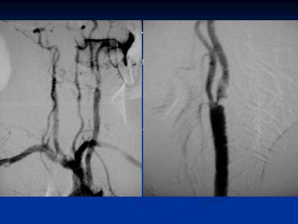 Colocación del stent carotídeo, donde se puede apreciar, que un primer momento no se consigue una correcta apertura del mismo.