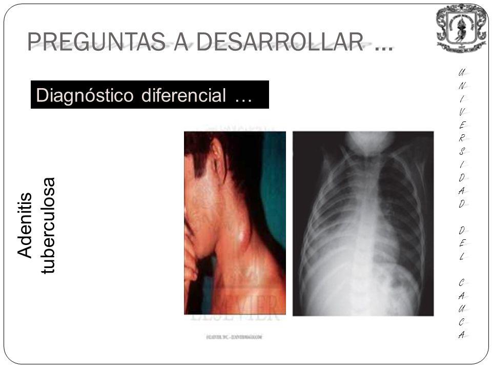 PREGUNTAS A DESARROLLAR … UNIUNIVERSVERSIDADIDAD DEL DEL CAUCA CAUCAUNIUNIVERSVERSIDADIDAD DEL DEL CAUCA CAUCA Diagnóstico diferencial … Adenitis tuberculosa