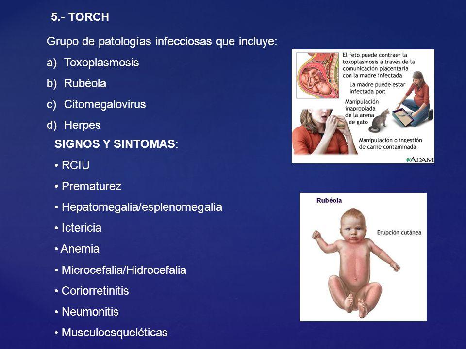 5.- TORCH Grupo de patologías infecciosas que incluye: a)Toxoplasmosis b)Rubéola c)Citomegalovirus d)Herpes SIGNOS Y SINTOMAS: RCIU Prematurez Hepatom