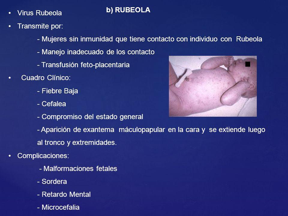 b) RUBEOLA Virus Rubeola Transmite por: - Mujeres sin inmunidad que tiene contacto con individuo con Rubeola - Manejo inadecuado de los contacto - Tra