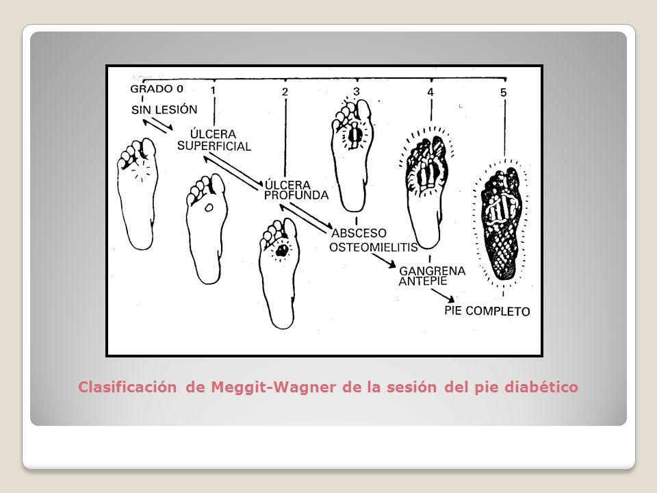 Clasificación de Meggit-Wagner de la sesión del pie diabético