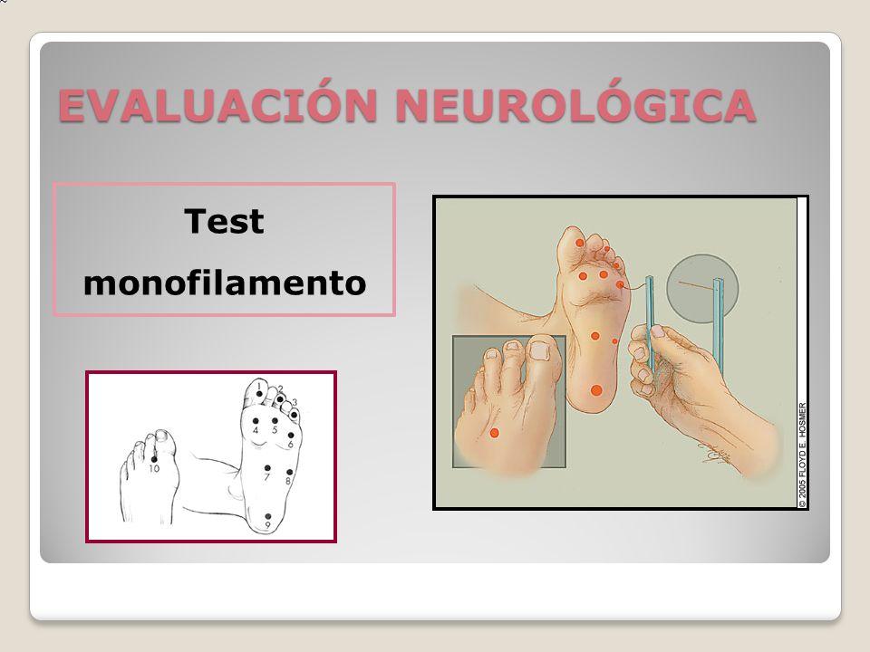 EVALUACIÓN NEUROLÓGICA Test monofilamento