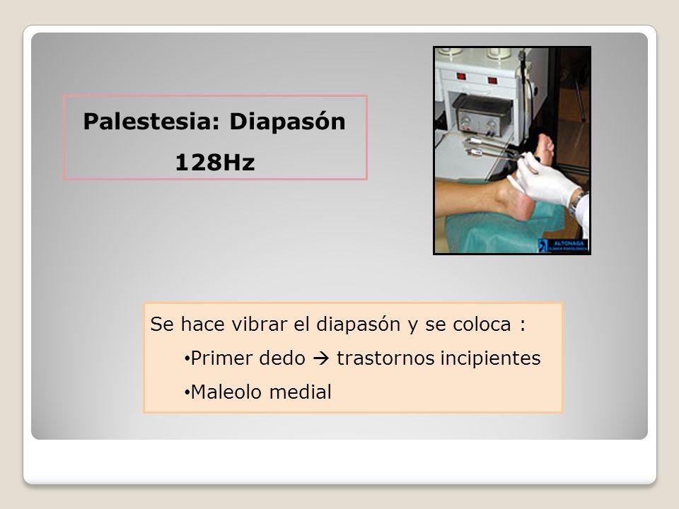 Palestesia: Diapasón 128Hz Se hace vibrar el diapasón y se coloca : Primer dedo trastornos incipientes Maleolo medial