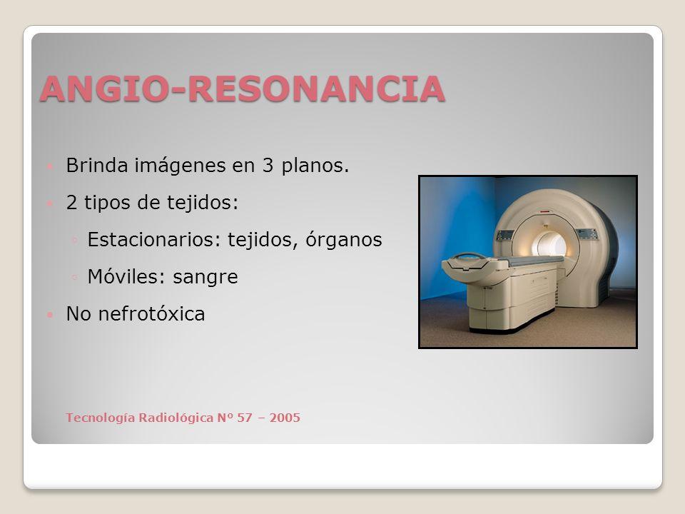 ANGIO-RESONANCIA Brinda imágenes en 3 planos. 2 tipos de tejidos: Estacionarios: tejidos, órganos Móviles: sangre No nefrotóxica Tecnología Radiológic