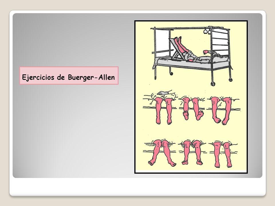 Ejercicios de Buerger-Allen