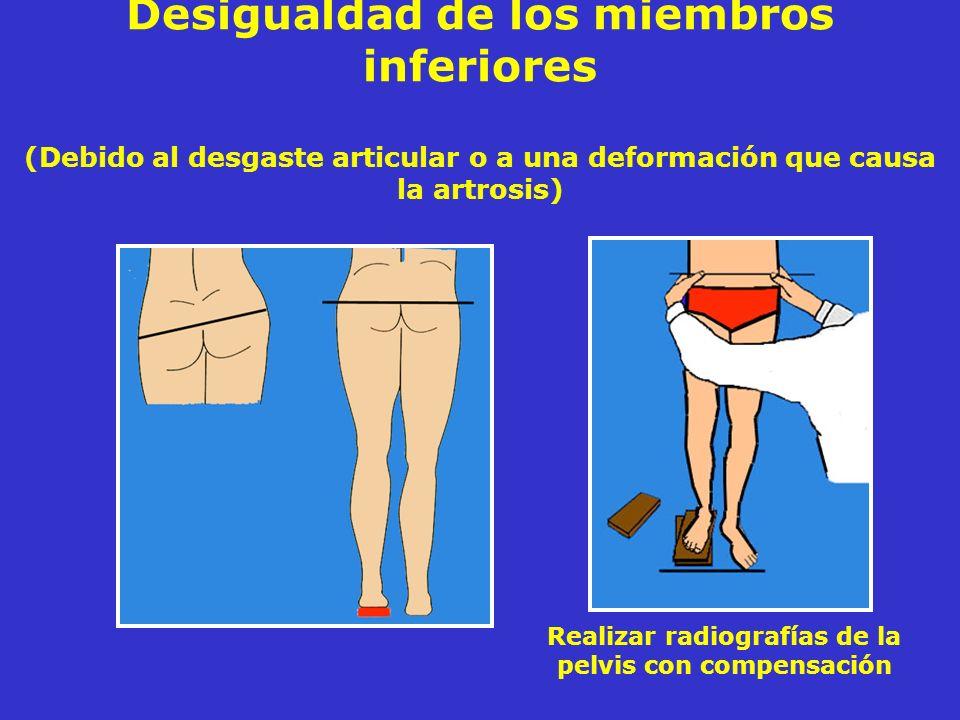 Desigualdad de los miembros inferiores (Debido al desgaste articular o a una deformación que causa la artrosis) Realizar radiografías de la pelvis con