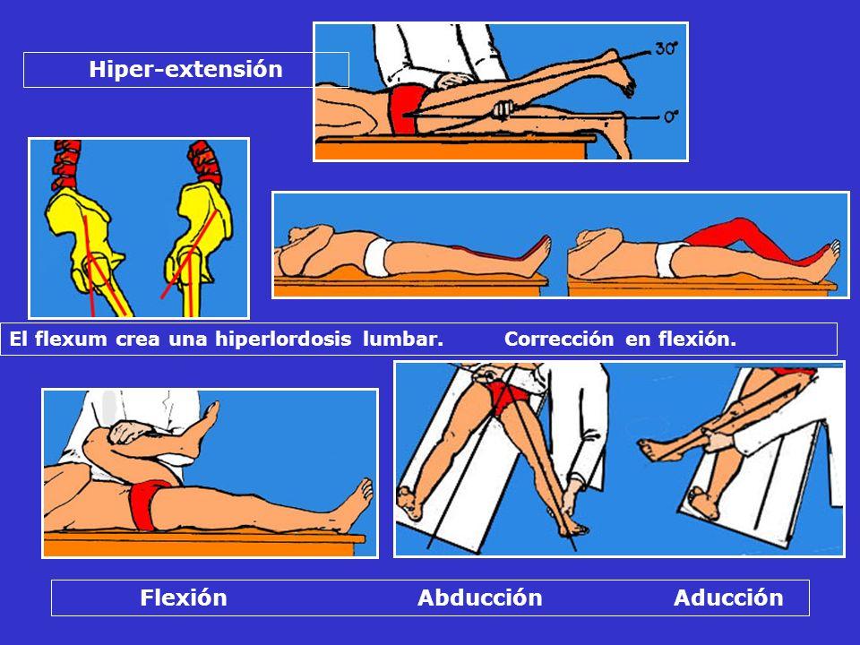 El flexum crea una hiperlordosis lumbar. Corrección en flexión. Hiper-extensión Flexión Abducción Aducción