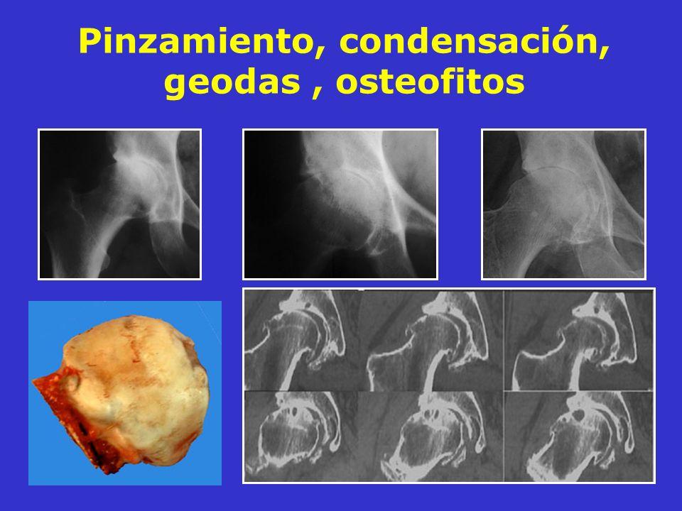 Pinzamiento, condensación, geodas, osteofitos