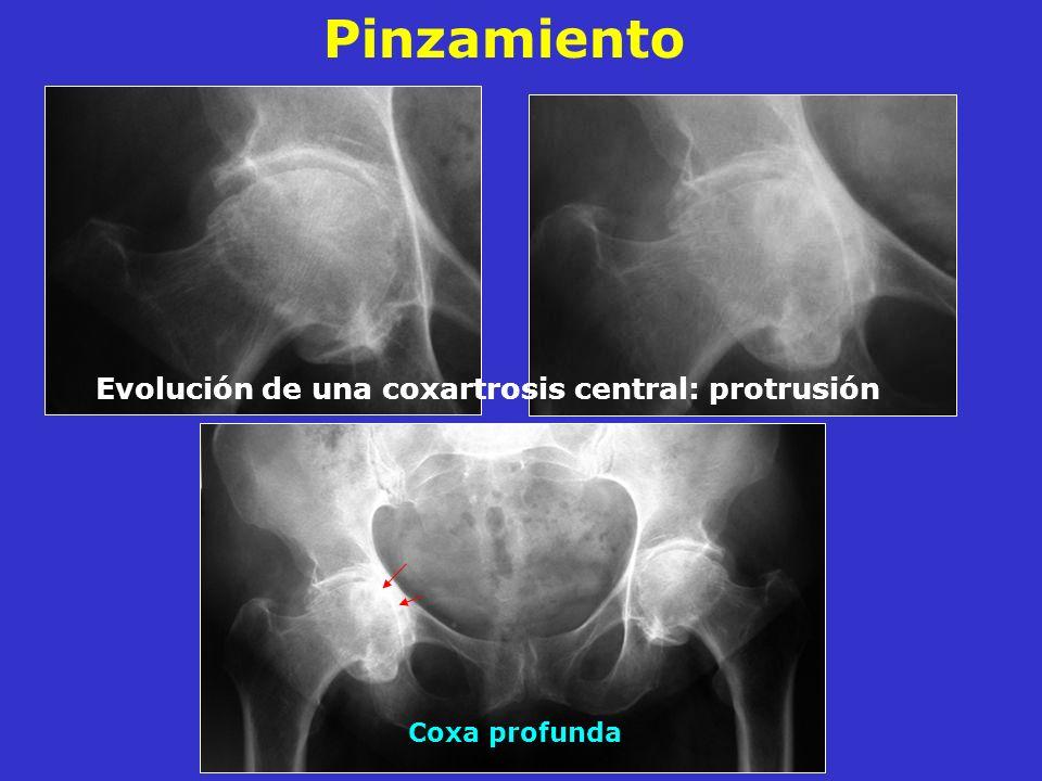 Evolución de una coxartrosis central: protrusión Coxa profunda Pinzamiento