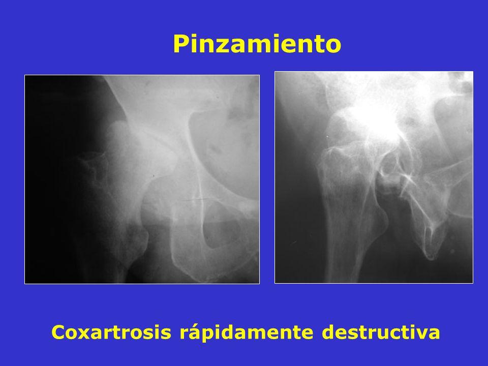 Coxartrosis rápidamente destructiva Pinzamiento