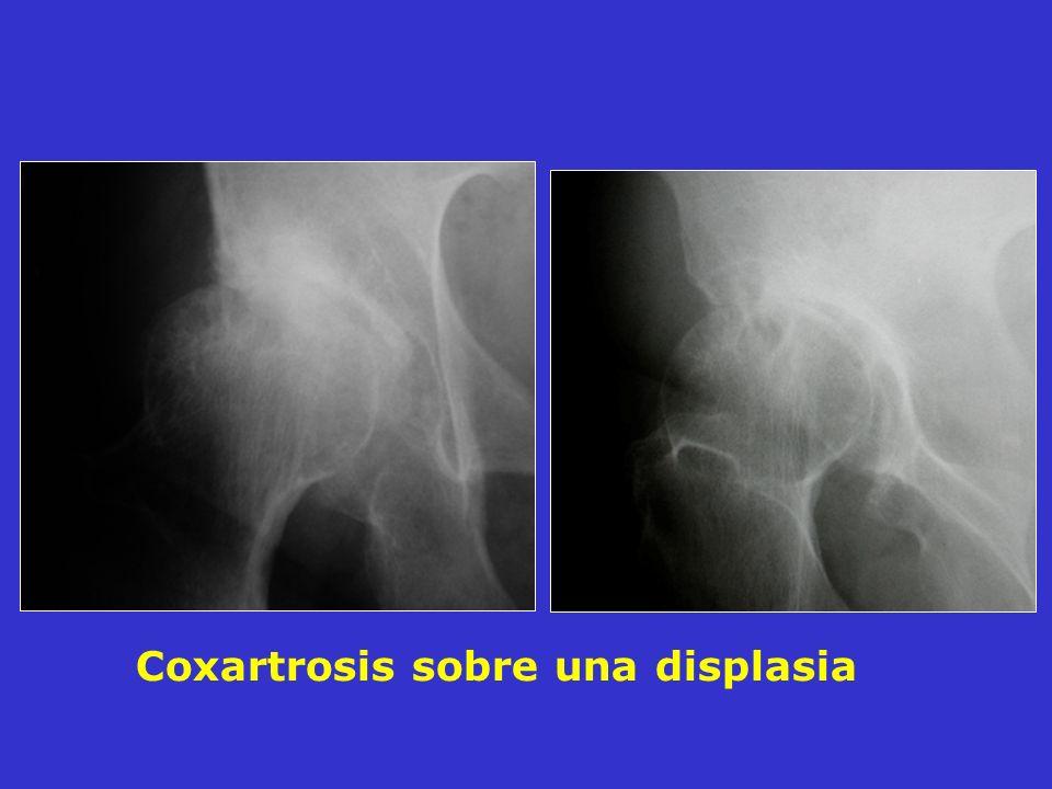 Coxartrosis sobre una displasia