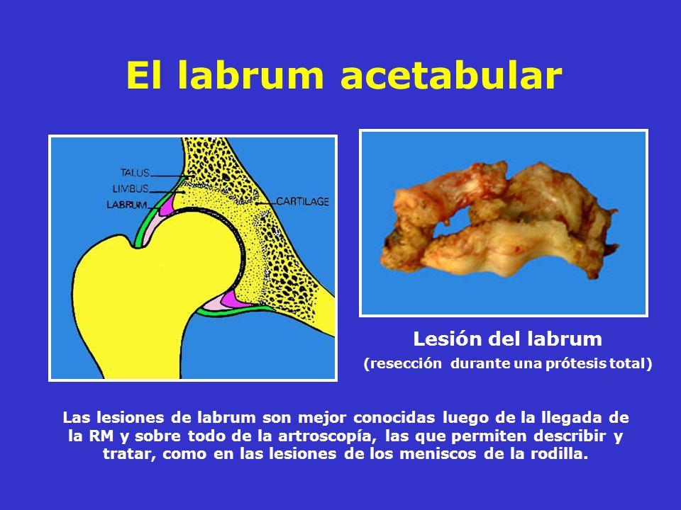 El labrum acetabular Lesión del labrum (resección durante una prótesis total) Las lesiones de labrum son mejor conocidas luego de la llegada de la RM