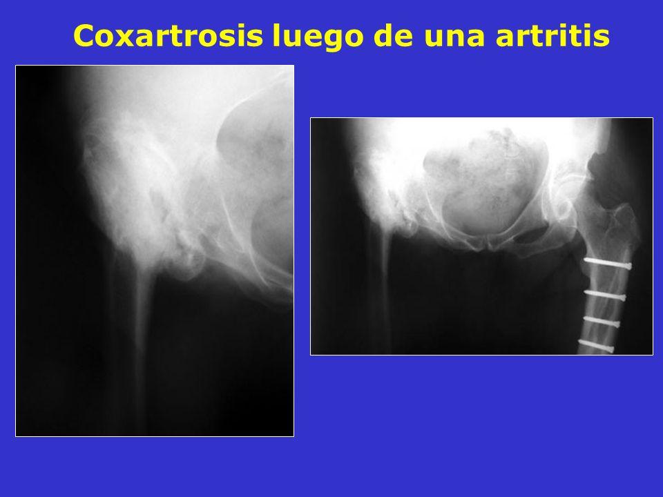 Coxartrosis luego de una artritis