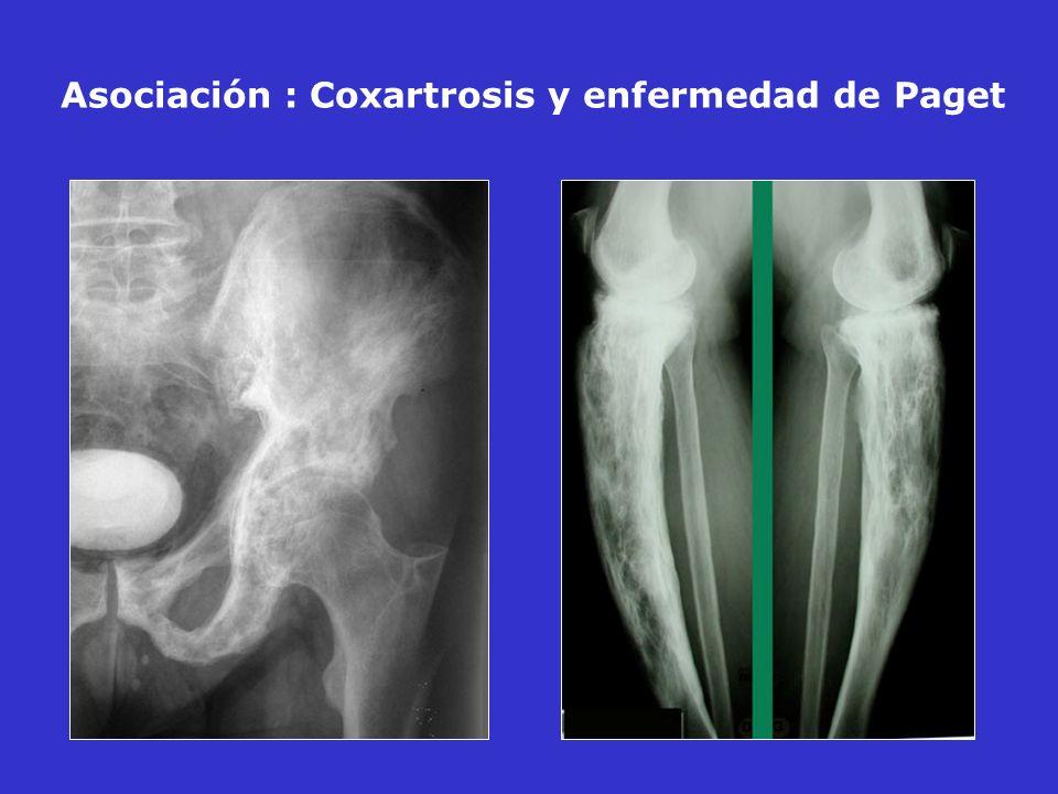Asociación : Coxartrosis y enfermedad de Paget