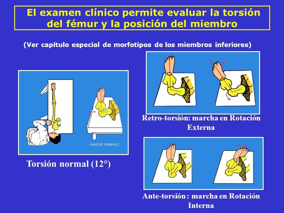 El examen clínico permite evaluar la torsión del fémur y la posición del miembro Retro-torsión: marcha en Rotación Externa Ante-torsión : marcha en Ro