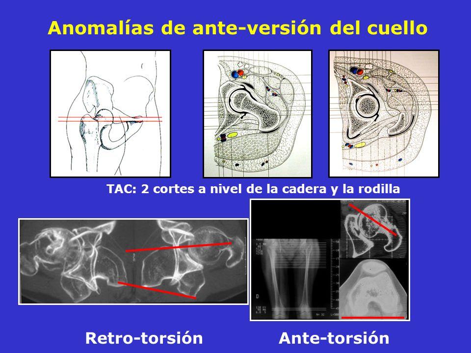Anomalías de ante-versión del cuello TAC: 2 cortes a nivel de la cadera y la rodilla Retro-torsión Ante-torsión